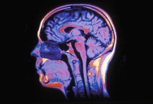 Mieux cartographier l'oxygénation du cerveau grâce à l'IRM par l'institut de neurosciences de Grenoble crédit Inserm