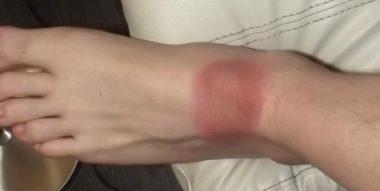 Rougeurs qui apparaissent après une piqûre de tique infectée, donnant lieu à la maladie de Lyme