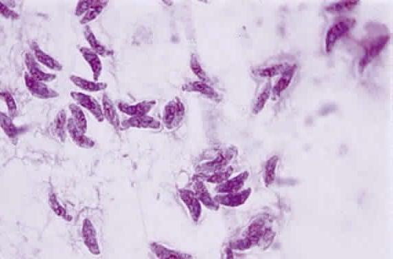 Toxoplasma gondii. DR