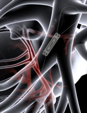 Représentation du capteur CardioMEMS, implanté dans une artère pulmonaire. © Chuga