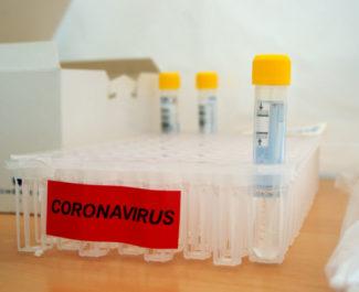 Prise en charge financière des tests PCR des agents non-vaccinés: la Métro répond non à FO