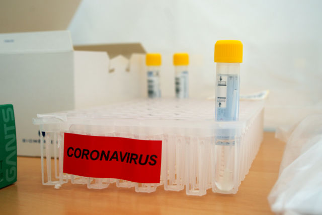 Tests Coronavirus © Anissa Duport-Levanti - Place Gre'net