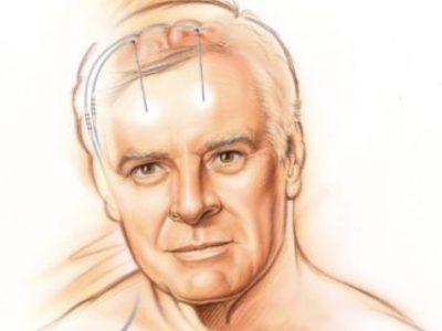 Clinatec parie sur l'alliance technologies - neurosciences pour lutter contre les maladies et les handicaps moteurs. Voici les premiers essais cliniques.