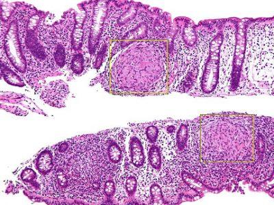 Nanotherapie-maladie-CrohnUNE
